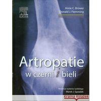Książki medyczne, Artropatie w czerni i bieli (opr. twarda)