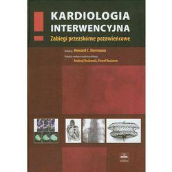 Kardiologia interwencyjna. Zabiegi przezskórne pozawieńcowe
