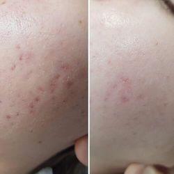 Krem na dzień regulujący mikrobiom skóry 50 ml marki Arkana